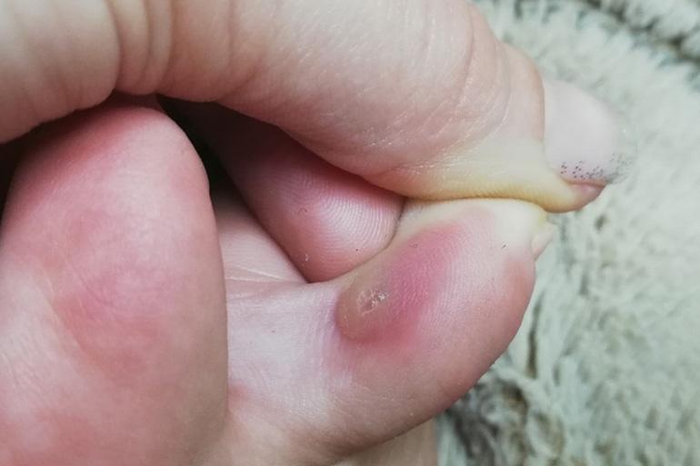Мозоль между пальцами