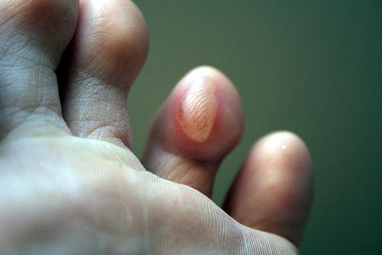 Как вылечить мозоли на пальцах ног